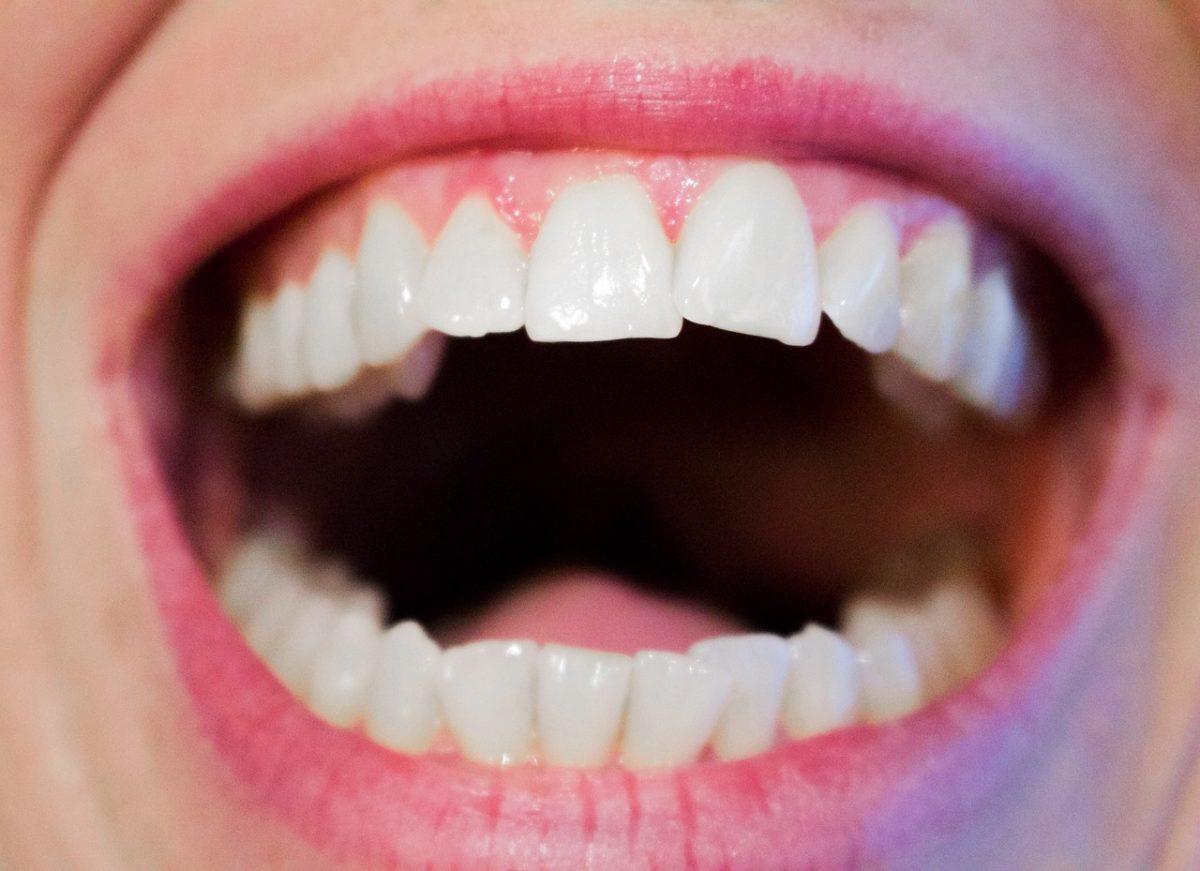 Nowoczesna technologia stosowana w salonach stomatologii estetycznej zdoła spowodować, że odbierzemy ładny uśmieszek.